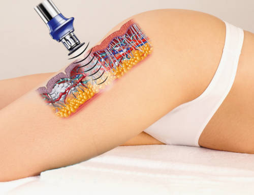 The X-Wave anti-cellulite treatment